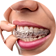 invisalign.png