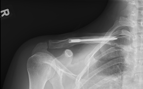 Clavicle Fracture ORIF with Accumed Scre