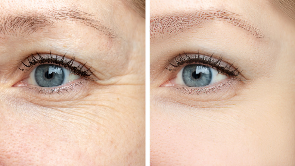Canva - Woman face, eye wrinkles before