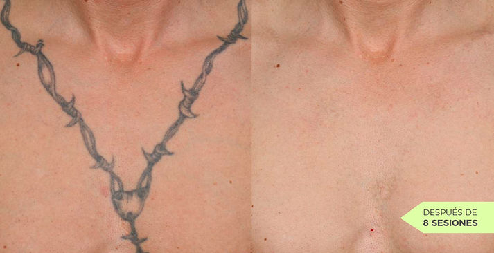laser-tattoo-removal-before-and-after-1.