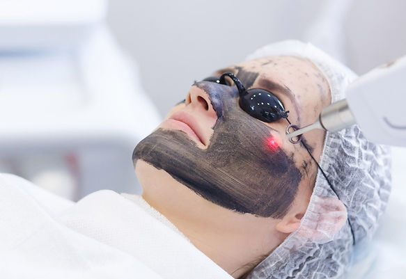 laser-for-life-carbon-treatments-1.jpg