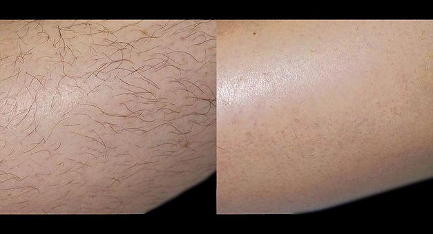 laser_hair_removal_leg2.jpg