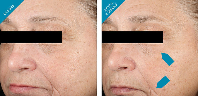 skinceuticals-before-after.jpg