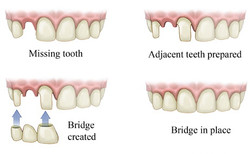 Dental_Bridge_Southealing