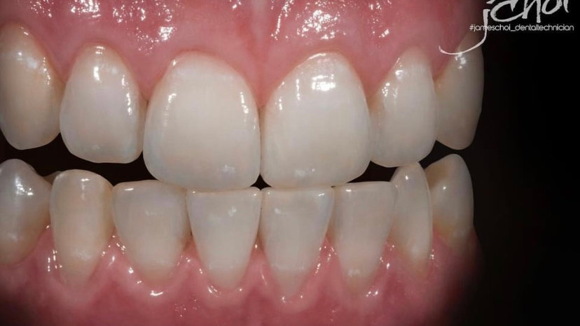 MIYO Workshop with James Choi ( Dental Technicians only)