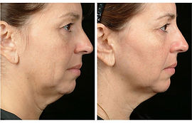 NuMe-Facebook-Before-After-Photos-Commen