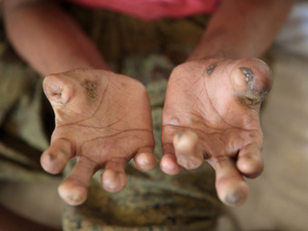"""The Leprosy of Greed"""""""