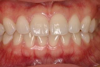 ホワイトニングの症例 山崎歯科医院 新潟市 中央区 歯医者 歯科 開院30年以上の実績と技術。