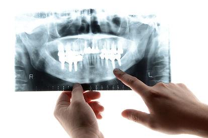 山崎歯科医院 新潟市 中央区 歯医者 歯科 レントゲン