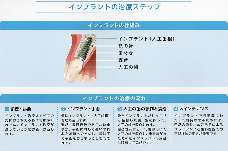 インプラント 山崎歯科医院 新潟市 中央区 歯医者 歯科 開院30年以上の実績と技術。