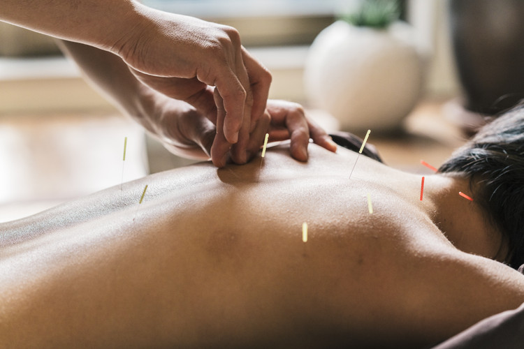 Therapist Giving acupuncture Treatment T
