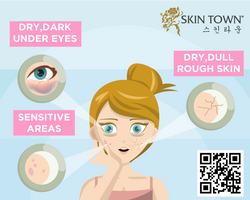 Beauty Tips : Dry Skin