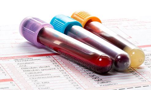 Funtional Testing Laboratory Test image