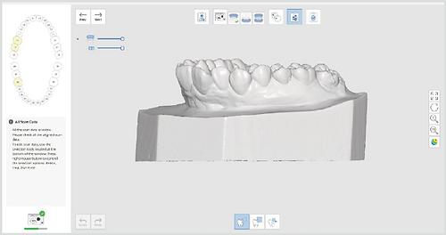 Interproximal area scan@3x.png