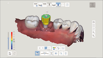 A.I Abutment A.I Scan Body Matching_2x.p