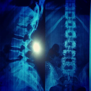 Los huesos no duelen. Radiografía de la cotidianidad.