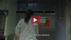 Bacteria in catered food: A lab test | Video