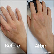 This lady had hand eczema and tried many