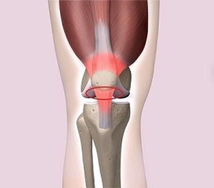 knee-pain-treatments.jpg
