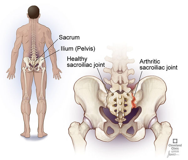 back-pain-problem.jpg