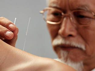 Part I: Why You Should Have A Family Acupuncture Doctor? | 【于博士文章系列】为什么要去看针灸医生(一)?