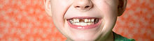 can-retainers-straighten-teeth-e1445261661125.jpg