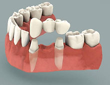 Dental-bridge.jpg