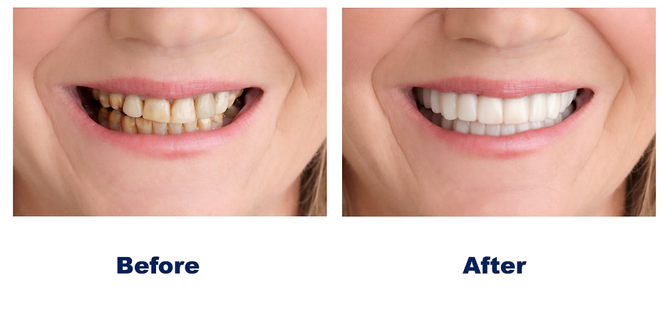 anap-on-smile-before-after.jpg