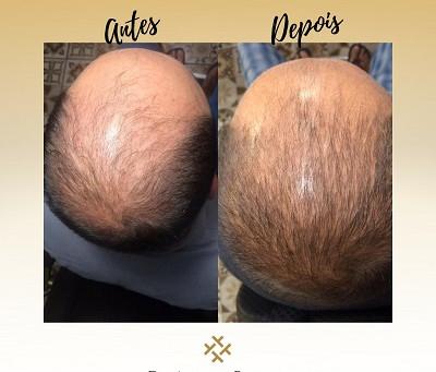 Queda de cabelo? Conheça a Intradermoterapia Capilar, tratamento que pode devolver seus cabelos