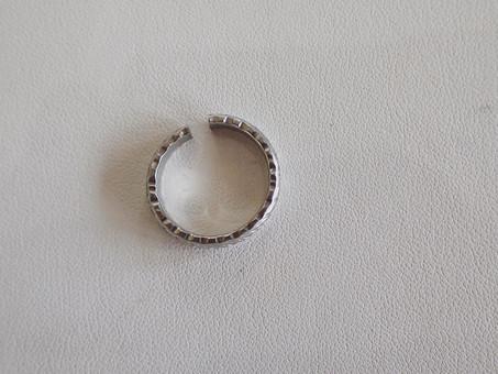 【指輪切断実例】入院前に、外せなくなった結婚指輪を切断いたしました。