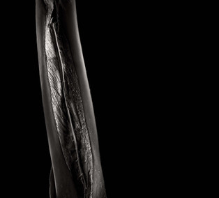 Radius, ulna and interosseous membrane of forearm