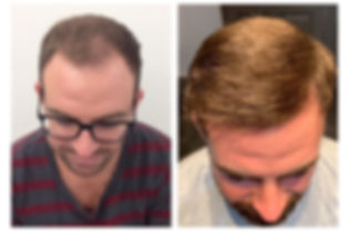 before and after photo of man who had a hair transplant