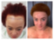 before and after photo of lady who had a hair transplant