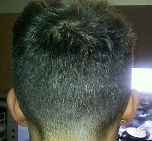 photo of mans back of head where a fue hair transplant was performed