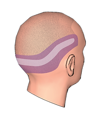 Hair Transplant Surgery Overview