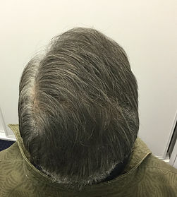 photo of mans back of head where a fut hair transplant was performed