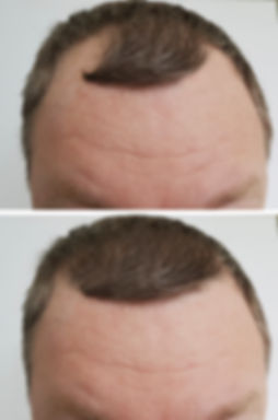 baldness man before and after_.jpg