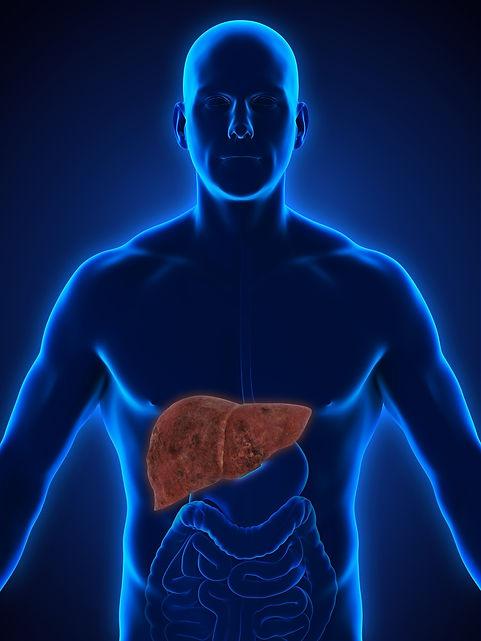 iStock-656975240 fatty liver.jpg