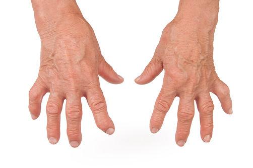 iStock - Arthritis_000024000806.jpg