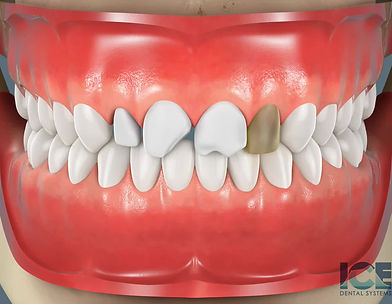 Dental veneers can be made from porcelain or from resin composite materials. Porcelain veneers resist stains better than resin veneers.Dental veneers are thin, tooth-colored shells that are attached to the front surface of teeth to improve their appearance. They're often made from porcelain