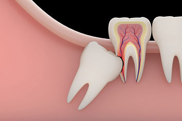 wisdom-teeth-removal DENTAL CLINIC IN HU
