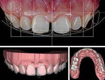 Degital Smile Design.jpg
