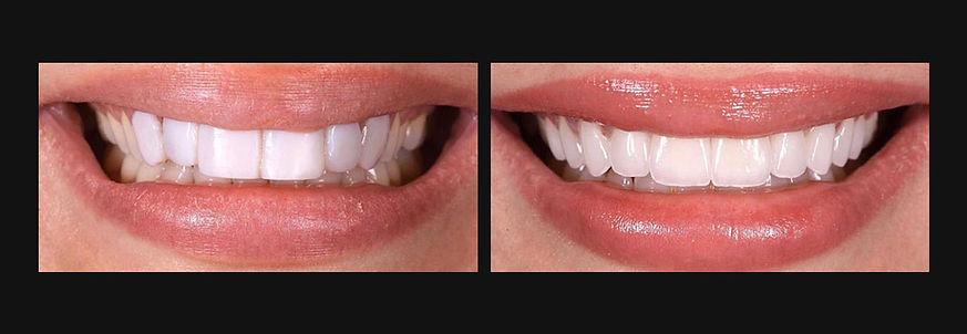 Bollywood Smile Makeover.jpg