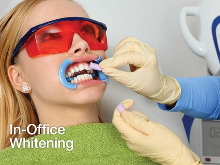 Is Professional Teeth Whitening Worth It?