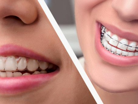 Are There Alternatives To Braces For Adults?If So, What Are They?