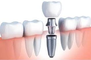 dental implant Treatment.jpg
