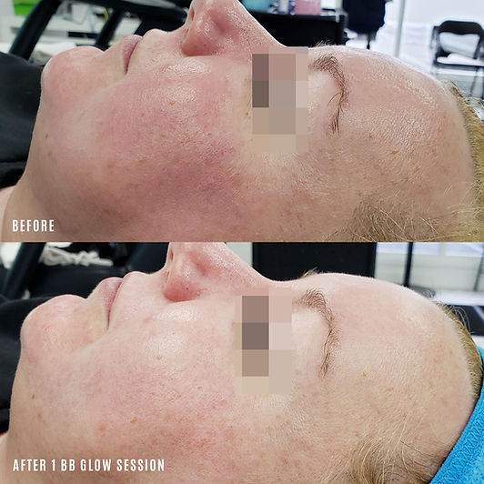 bb glow before and after