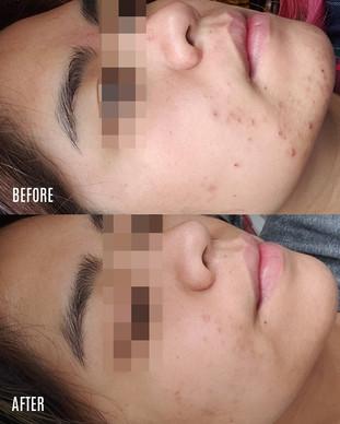 AJ_acne-BA.jpg