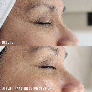 nano infusion before and after