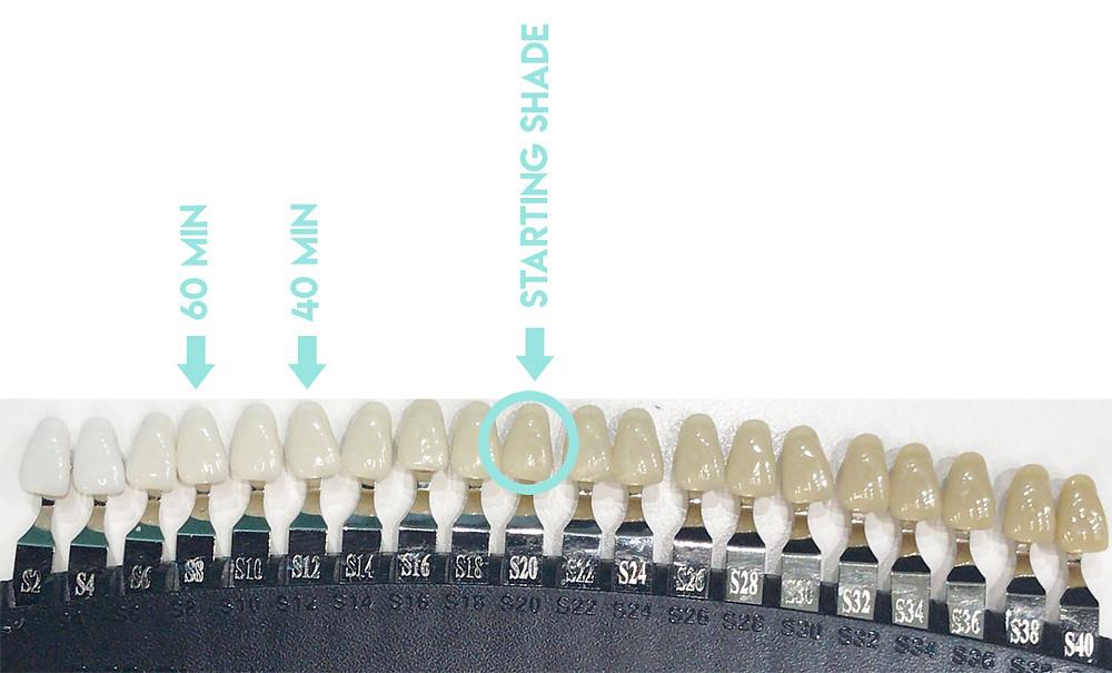 Mint Smilebar - Vancouver teeth whitening